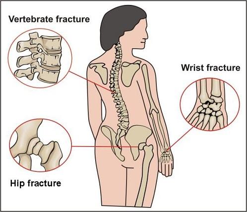 osteoporosis thesis