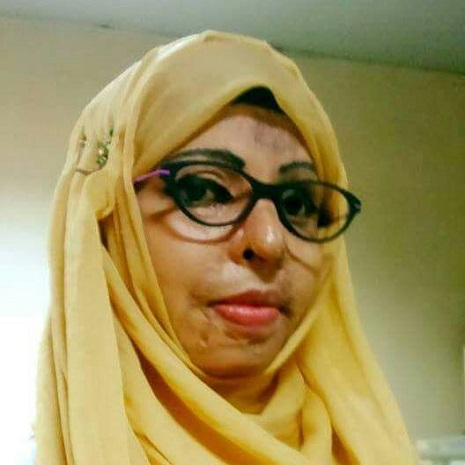 Acid attack victim Yasmeen gets National Award