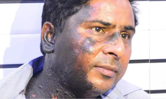 Urdu poet attacked with acid for saving school girls from eve teasers