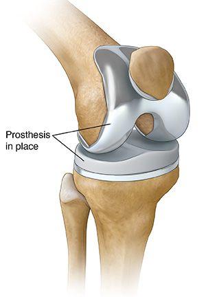 Govt to monitor price of orthopaedic knee implants